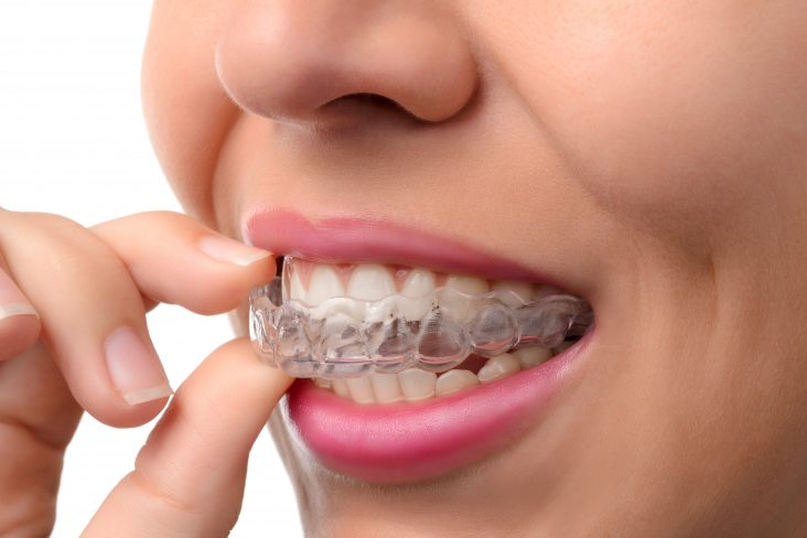 Candidate for Invisalign
