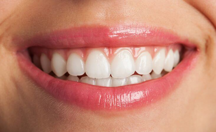 teeth whitening myths