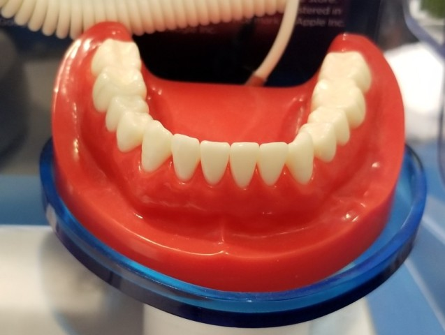 a-set-of-plastic-human-teeth-and-gum-line-used-by-dentists-to-explain-health
